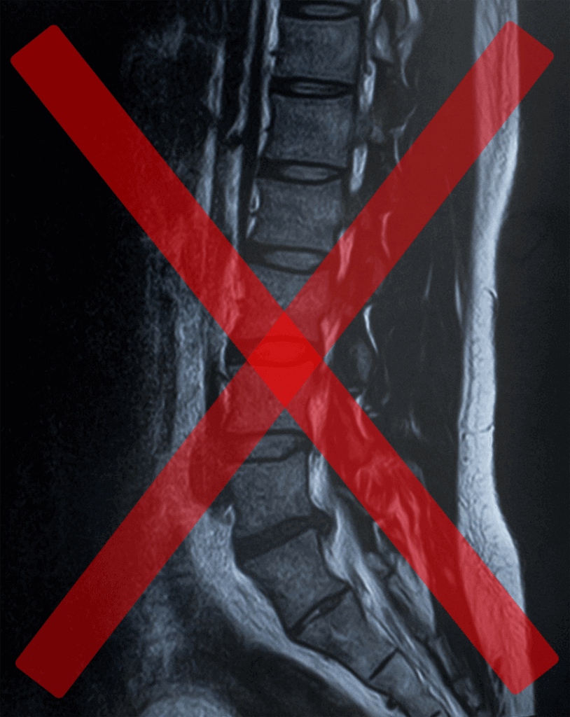 坐骨神経痛 しびれ 腰痛