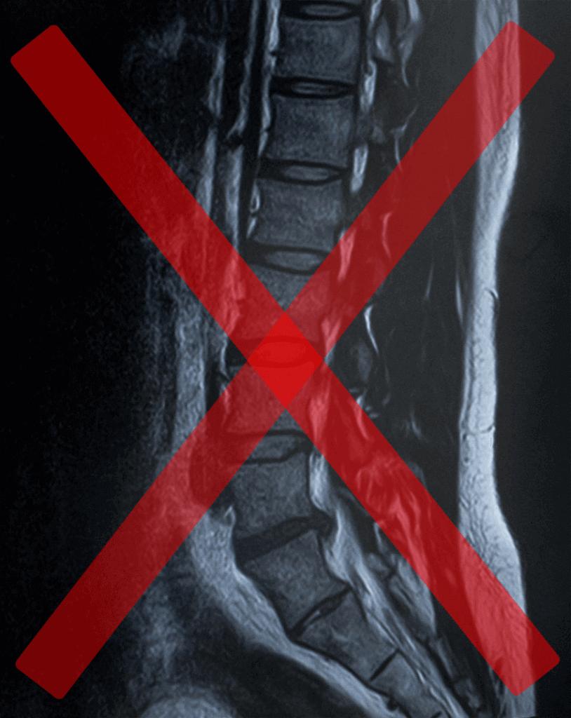 脊柱管狭窄症、ヘルニア